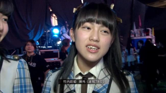 竹内彩姫の歯並び